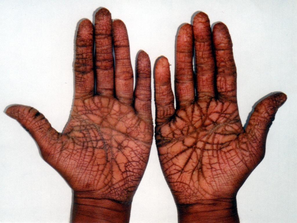 Girija's Hände